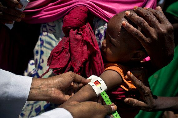 Still Time To Avert Famine In Somalia - But We Must Act
