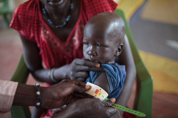 Famines Are Man-Made, But We Also Have The Power To Prevent