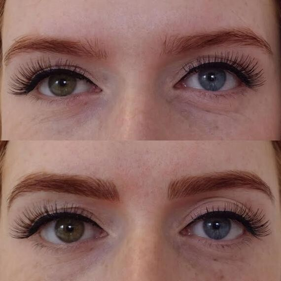 Eyebrow Microblading: The Semi Permanent Brows That