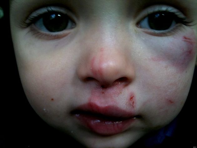 Katie Ann Guttridge, Three, Beaten Black And Blue By Two-Year-Old At