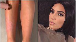 Kim Kardashian e a condição das pessoas que convivem com a