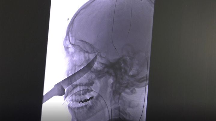 An X-ray shows the extent of the knife's penetration into the boy's head.
