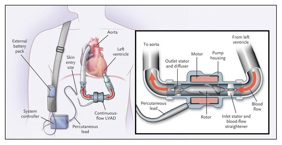 This diagram shows a left-ventricular assist device similar to those the Roman brothers use.
