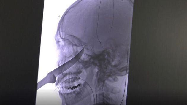 エリさんの頭に刺さったナイフをうつしたレントゲン写真