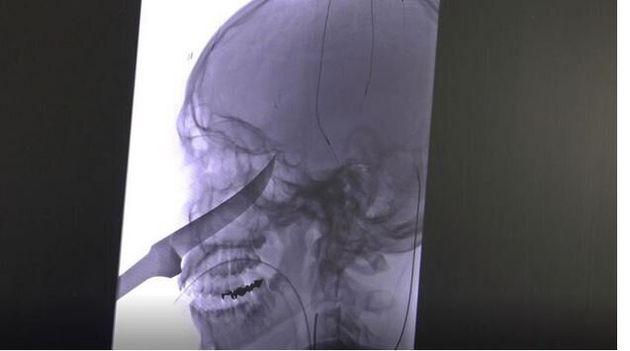Κάνσας: Οι γιατροί αφαίρεσαν μαχαίρι από εγκέφαλο