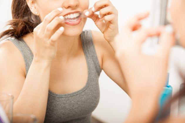Sbiancante denti, i migliori da usare a casa