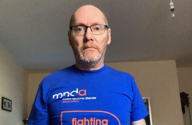 Martin Burnell has motor neurone disease, a terminal