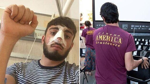 Aggressione ai ragazzi del Cinema America a Roma: quattro persone