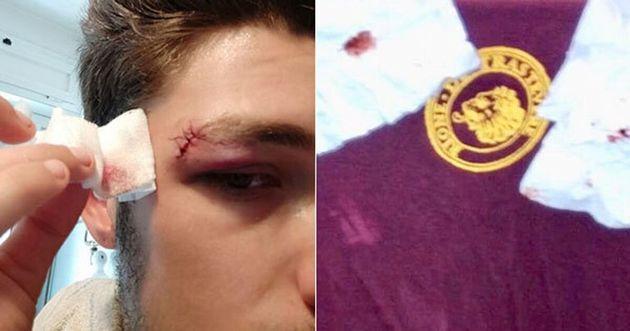 I ragazzi del Cinema America sono stati picchiati per festeg