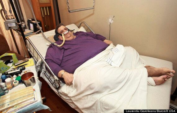 Obese Michael Hebranko, Yo-Yo Dieter Who Gained And Lost 286 Stone Suffering Heart, Kidney, Liver Failure