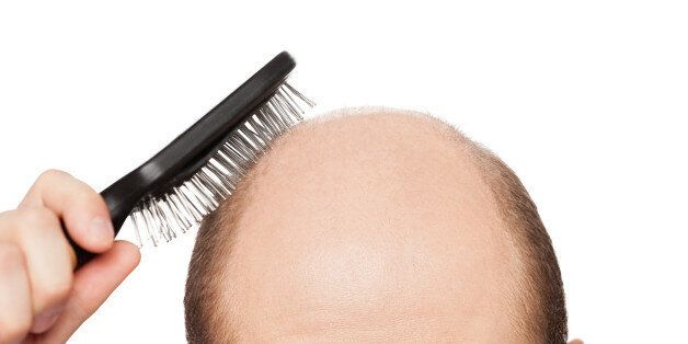 human alopecia or hair loss ...