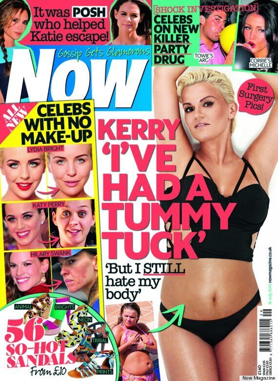 Kerry Katona Reveals She's Made 'Biggest Mistake' By Splitting With Steve Alce