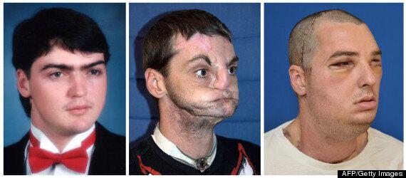 Richard Lee Norris, Face Transplant Patient Pictured Seven Months After Surgery
