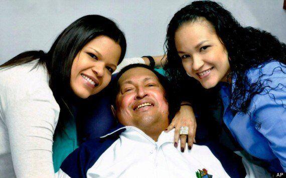 Hugo Chavez, President Of Venezuela, Dead From Cancer