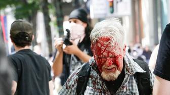 PORTLAND, OR - JUNE 29: (EDITORS NOTE: Image contains graphic content.)  The Rose City Antifa brutally attacks an unidentified right aligning man at Pioneer Courthouse Square on June 29, 2019 in Portland, Oregon. Several groups from the left and right clashed after competing demonstrations at Pioneer Square, Chapman Square, and Waterfront Park spilled into the streets. According to police, medics treated eight people and three people were arrested during the demonstrations. (Photo by Moriah Ratner/Getty Images)