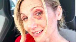 Anche Cuccarini vittima delle buche di Roma: la showgirl posta una foto con l'occhio
