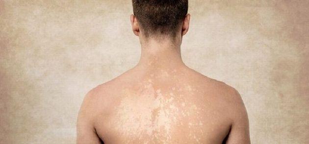 Sur une peau bronzée le champignon crée des taches blanches et sur peau claires des taches