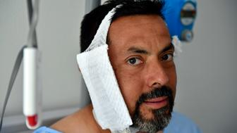 """REMOVES WEIGHT OF BULL - Jaime Alvarez from Santa Clara County, California, sits in a hospital in Pamplona, northern Spain, Monday, July 8, 2019 after being gored by a bull Sunday at the San Fermin Festival. Alvarez, a 46-year-old who works as a public defender in Santa Clara County, California, says that being ran over and gored in the neck by a bull is something he will never forget. """"The joy and the excitement of being in the bullring quickly turned into scare, into real fear for my life,"""" the San Francisco resident told The Associated Press on Monday at the regional hospital where he recovered a day after undergoing an urgent 2-hour-long surgery.  (AP Photo/Alvaro Barrientos)"""