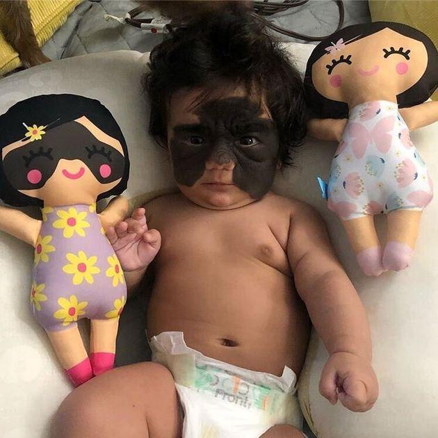 ΗΠΑ: Βρέφος που γεννήθηκε με το σημάδι του «batman» στο πρόσωπο βιώνει απάνθρωπο