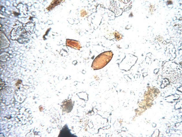 화지산의 변소터 유적의 바닥층을 분석한 결과 검출된 백제시대 편충알들. 1500년전의 기생충 흔적이다.