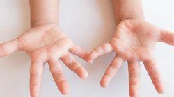 「手足口病」とは?