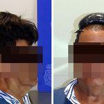 Βαρκελώνη: Συνελήφθη στο αεροδρόμιο προσπαθώντας να περάσει μισό κιλό κοκαΐνη κρυμμένη στην περούκα