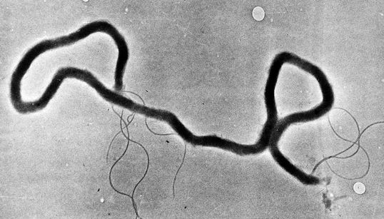 Syphilis Rates In Alberta Are The Highest They've Been Since