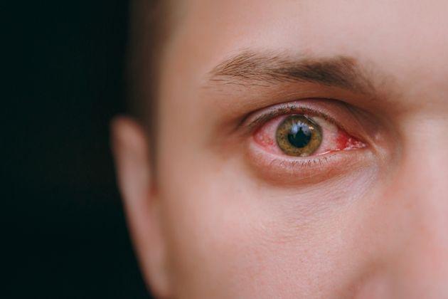 Ένας άνδρας ένιωσε έναν ερεθισμό στο μάτι του - Ένα τσιμπούρι τρεφόταν από τον βολβό