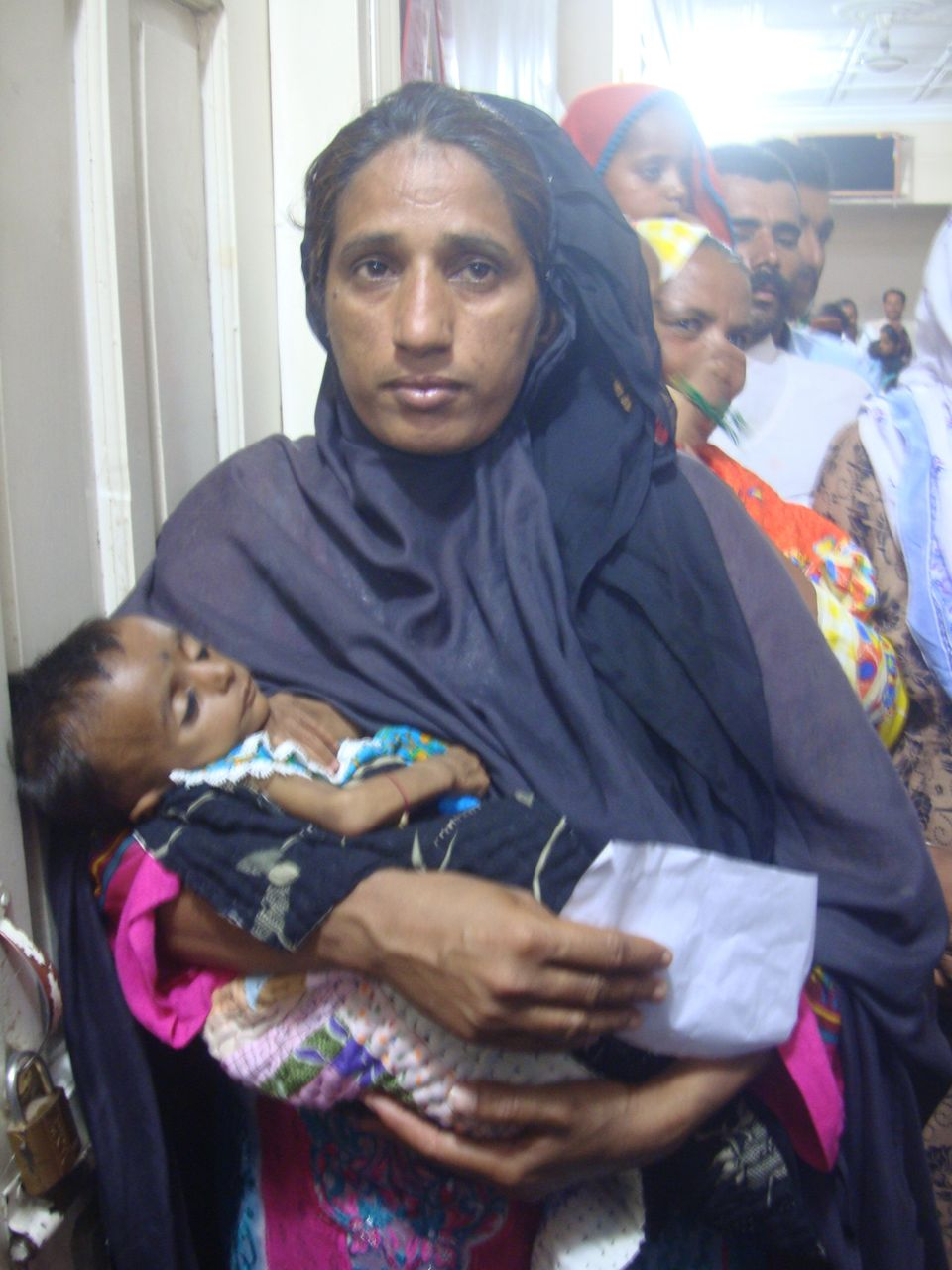 A woman carries her malnourished baby while waiting for her turn to see HIV experts at the Chandka Medical...