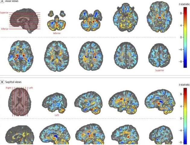 Τι είναι το σύνδρομο της Αβάνας που αλλοιώνει τους εγκεφάλους Αμερικανών και Καναδών