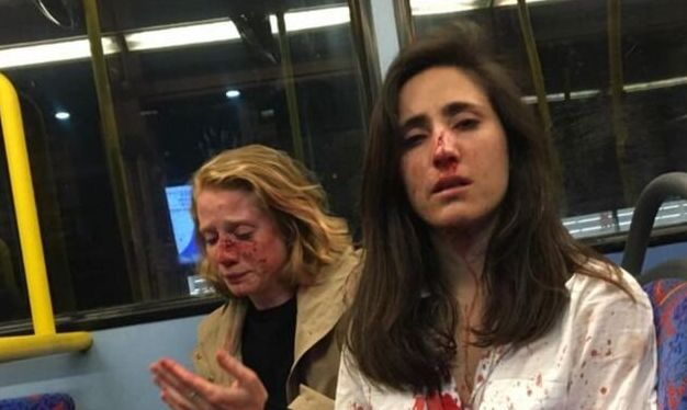 Melania Geymonat, de 28 anos,e sua companheira, Chris, foram atacadas por um grupo de jovens na...