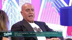 Kiko Matamoros habla en 'Sábado Deluxe' de sus tumores: