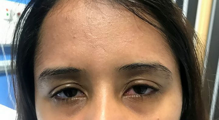 Gurcharan Kaur complained of itchy, red eyes.