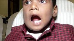 7歳の少年のあごから、526本の歯を除去