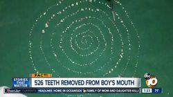 한 소년의 턱에서 526개의 치아가
