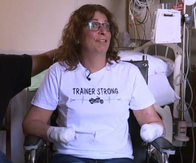 Την έγλειψε ο σκύλος της και οι γιατροί αναγκάστηκαν να της κόψουν τα χέρια και τα πόδια