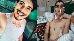 Polícia prende suspeito de crime homofóbico que deixou jovem sem andar e falar em
