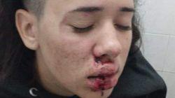 Esta jovem de 19 anos foi espancada 'igual a um menino' por ser