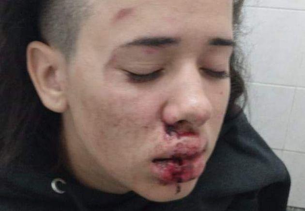 Jovem foi agredida na noite de 28 de julho; até o momento agressores não foram