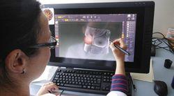 Seinbiose: de nouvelles prothèses mammaires sur mesure conçues au