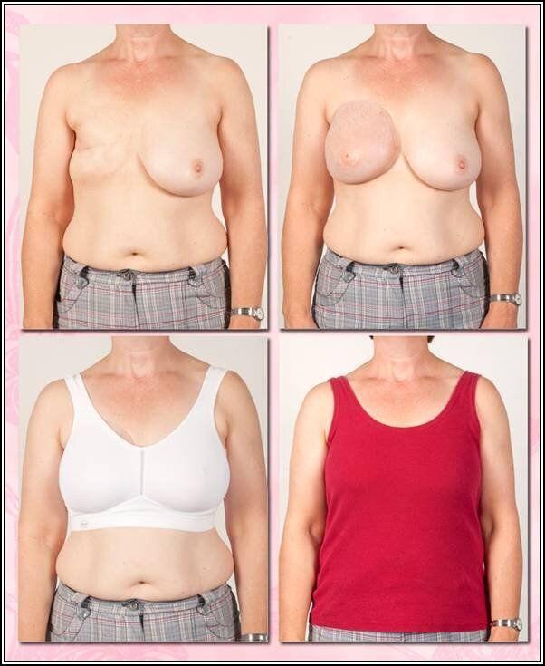 Un exemple du résultat après la conception et la mise en place d'une prothèse mammaire externe autocollante.