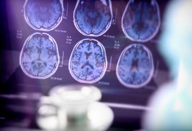 Un análisis de sangre puede detectar el alzheimer 20 años antes de que aparezcan sus