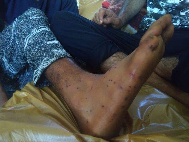 A young man with pellet injuries on his