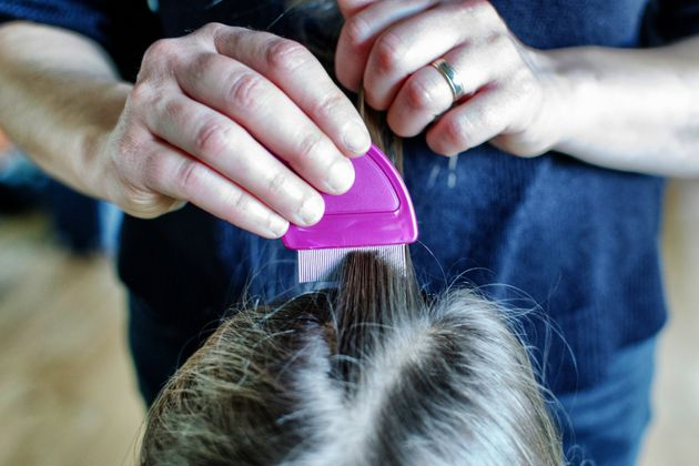 How To Properly Treat Head Lice (Because Hair Straighteners And Mayo Wont Do The Job)