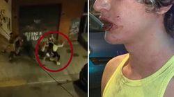 Picchiati e insultati. Due italiani vittime di un'aggressione omofoba a Valencia