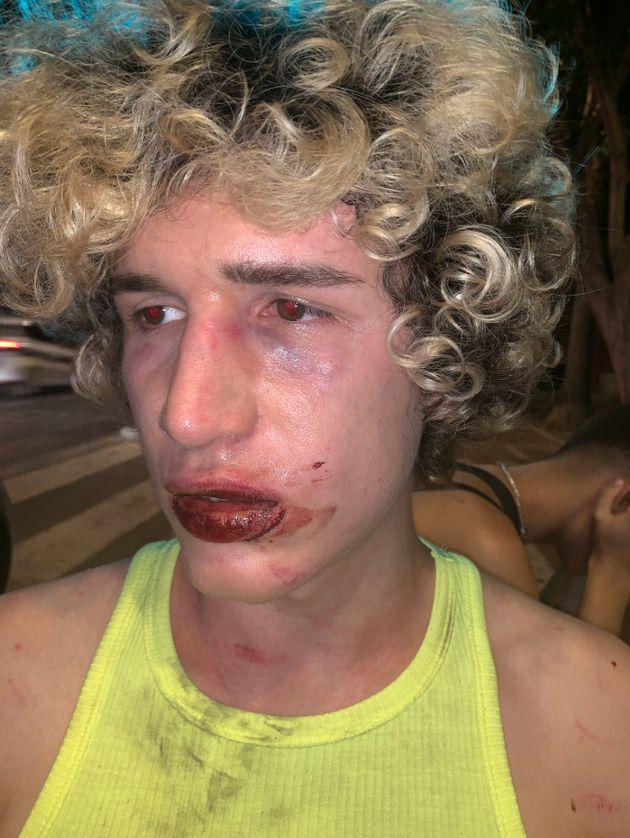 Imagen del joven, sangrando tras la