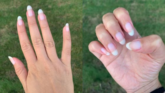 The author's natural, polish-free nails in August 2019, after using Nailtiques Formula 2 Plus every day for two weeks and then as a biweekly base coat over the course of three months.