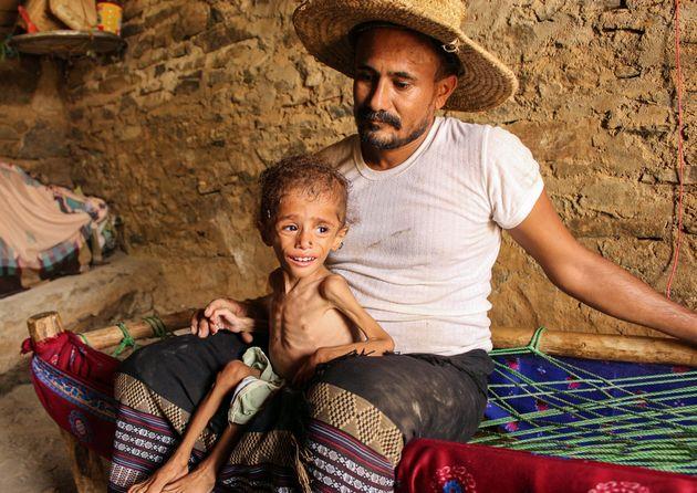 Αναστολή ανθρωπιστικής βοήθειας στην Υεμένη, ελλείψει