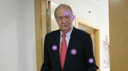 Todas las lesiones y operaciones del rey Juan Carlos, en una imagen