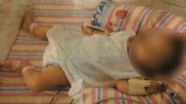 Αυστραλία: Βρέφος κινδύνευσε να πεθάνει από ασιτία επειδή οι γονείς του είναι